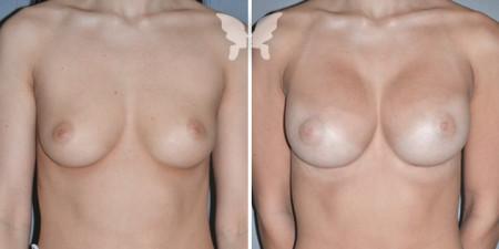 Фото до и после операции по увеличению груди