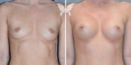 Фото после увеличения груди