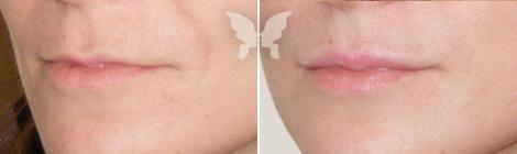Фото до и после операции «Киссельринга»