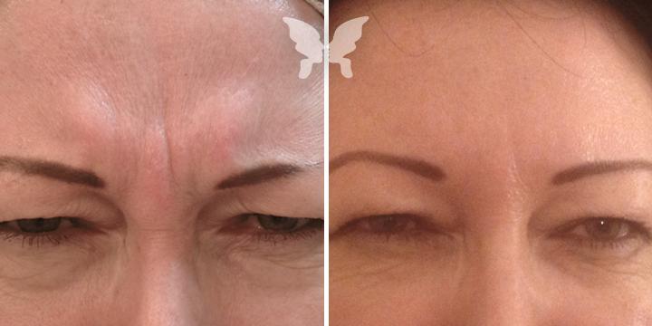 Фото результатов коррекция мимических морщин препаратом Botox