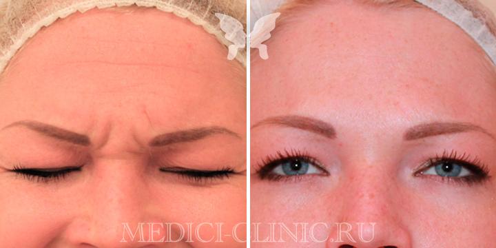 Фото до и после коррекции мимических морщин препаратом Диспорт