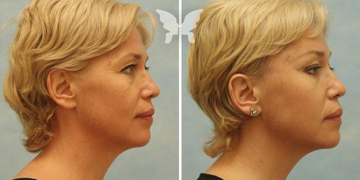 Фото результатов подтяжки лица (было-стало)