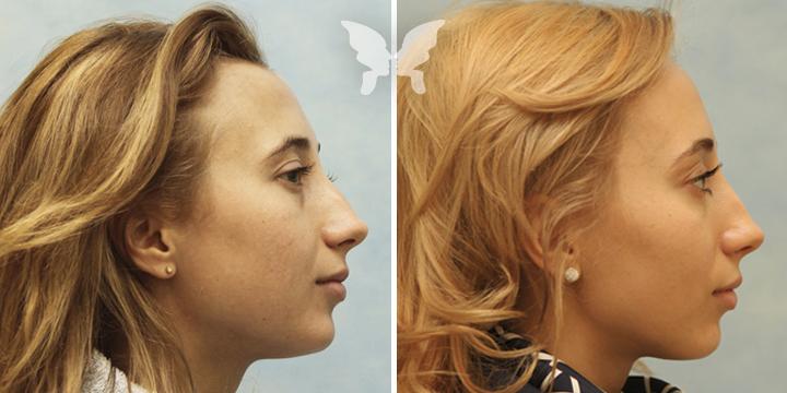 Результаты подтяжки лица (фото было-стало)