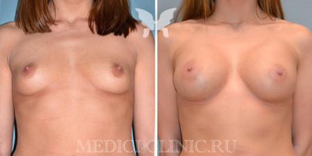 mamoplastika01