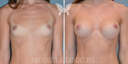 mamoplastika10