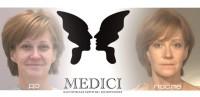 Постановка нитей Силуэт Лифт в клинике MEDICI