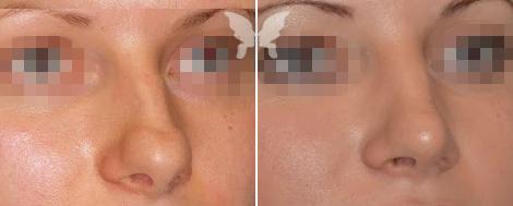 Фотография результатов ринопластики (до и после)