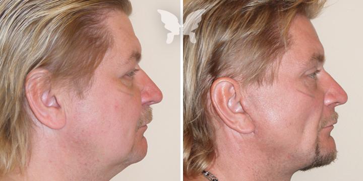 Подтяжка лица, фото до и после 1 года и 2 месяцев