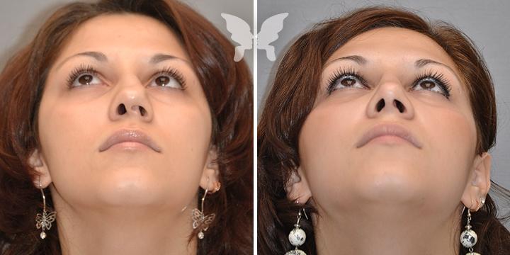 Фото до и после вторичной ринопластики