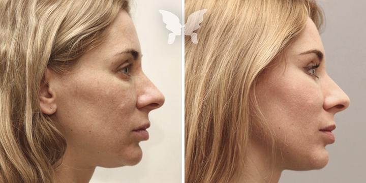 Фото результатов эндоскопической подтяжки лица
