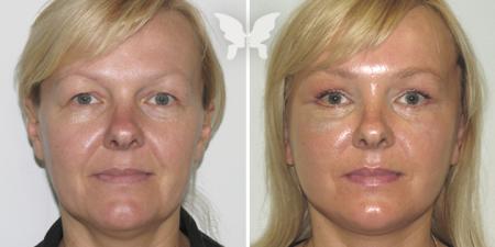 Фото результатов подтяжки лица