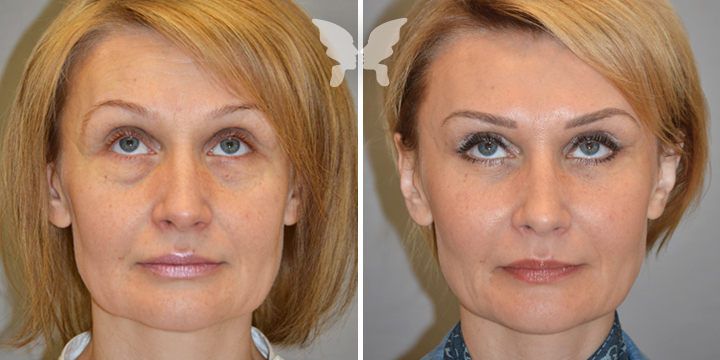 Подтяжка лица, фото до и после 4 месяцев