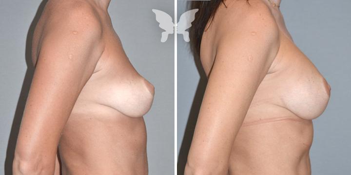 Фото результатов увеличения груди