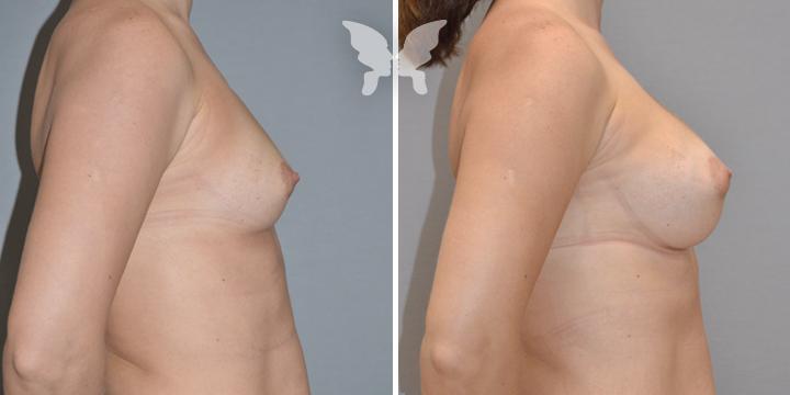 Результат увеличения груди (фото до и после)