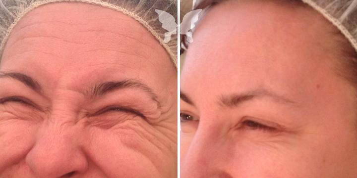 Фото до и после коррекции мимических морщин препаратом Botox