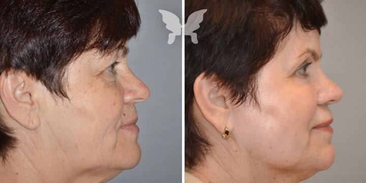 Результат лазерного омоложения (фото до и после)