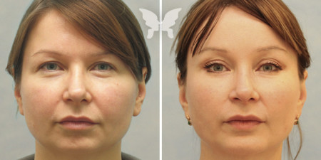 Результаты эндоскопической подтяжки лица. Доктор Янковская Н.Л.