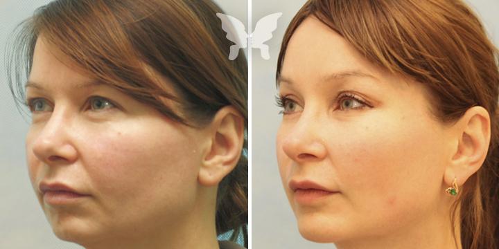 Фотографии до и после подтяжки лица