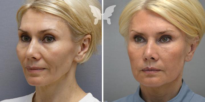 Липофилинг лица, фото до и после 3-х недель