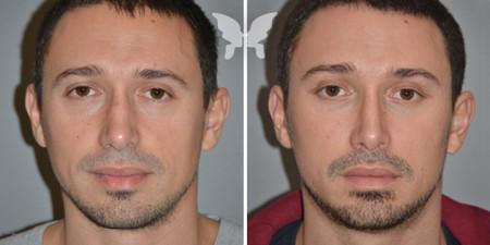 Результаты подтяжки лица у мужчин