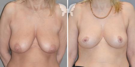 Результаты мастопекции