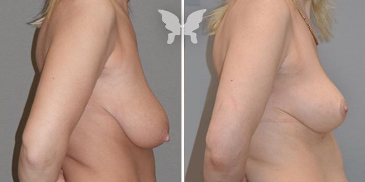Фото результатов мастопексии (до и после)