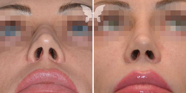 Фото результатов повторной ринопластики