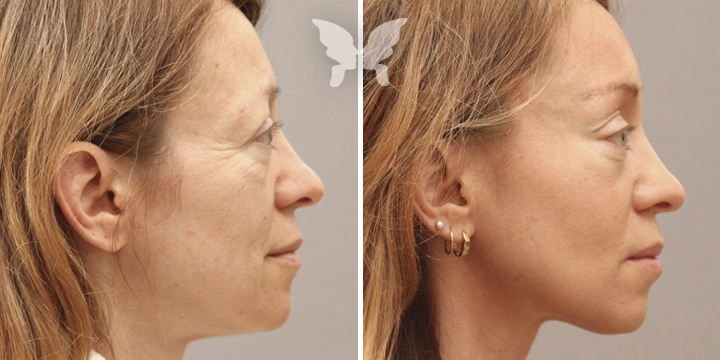 Результаты подтяжки лица