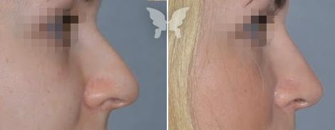 Фото результатов ринопластики (до и после)