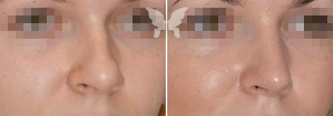 Фото результатов ринопластики - сравнение до и после