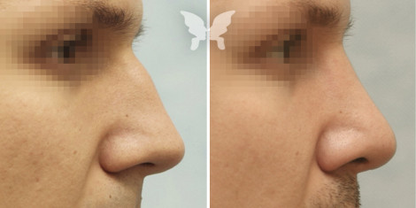 Результаты ринопластики у мужчин (фото до и поле)