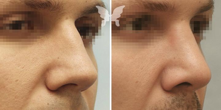 Фото до и после ринопластики у мужчин