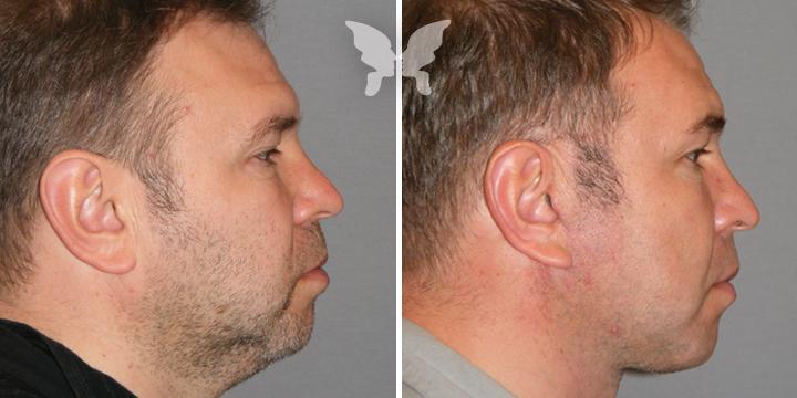 Подтяжка лица, фото до и после 3,5 месяцев