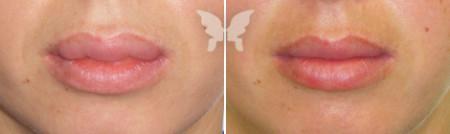 Результаты хейлопластики и увеличения губ