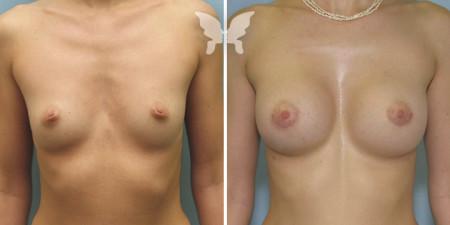 Результаты увеличения груди (фото было/стало)