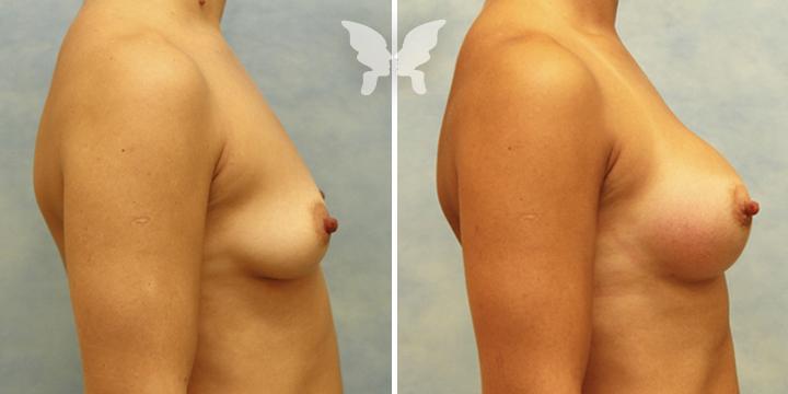 Фото результатов увеличения груди (было/стало)