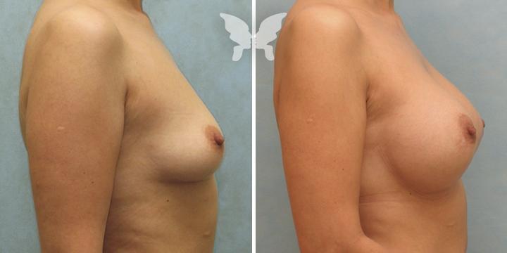 Результаты увеличения груди (было-стало)