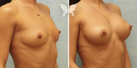 Результаты увеличивающей маммопластики (было/стало)