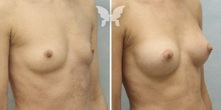 Результаты увеличения груди (фото до и после 3 месяцев)