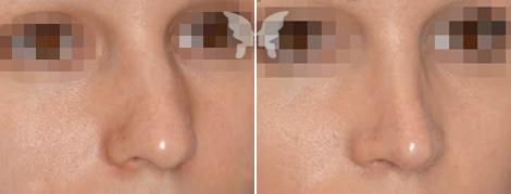 Результаты ринопластики у женщин (фото до и после)