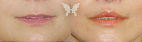 Фото до и после операции «V-Y пластика»