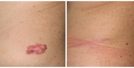 Результаты операции по коррекции рубцов, фото до и после