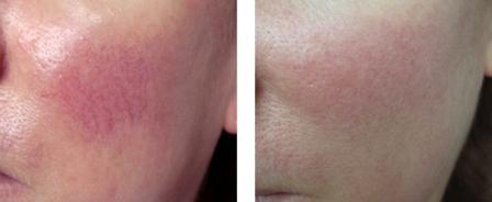 Лечение сосудистых дефектов кожи, фото до и после
