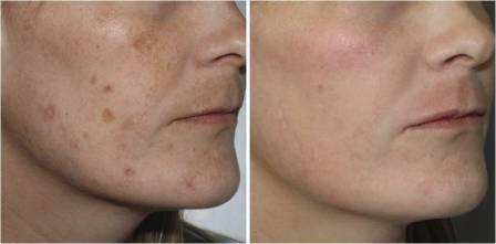 Лазерное лечение пигментации кожи, фото до и после