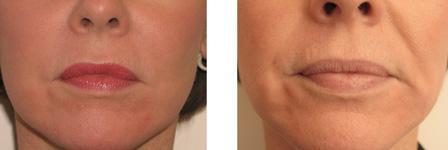 Безоперационная инъекционная подтяжка препаратом Radiesse, фото до и после