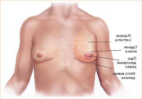 Лечение гинекомастии