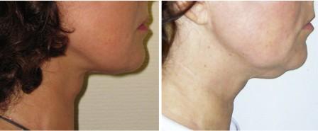 Результаты SMAS-лифтинга, фото до и после