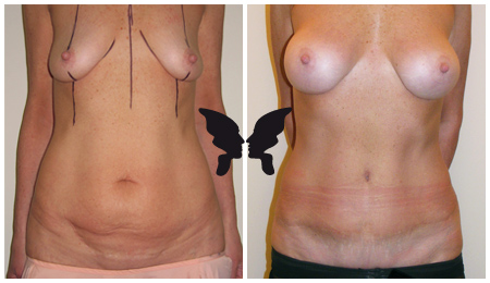 Абдоминопластика, фото до и после 2-х лет
