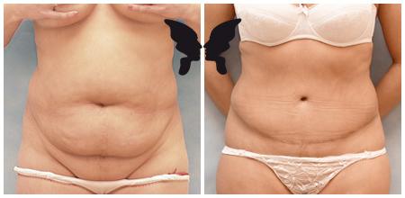 Абдоминопластика, фото до и после