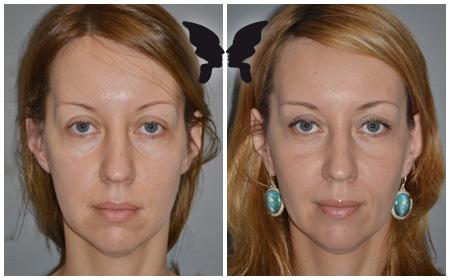 Результаты эндоскопии средней зоны лица с перераспределением жировых пакетов в носослезной борозде